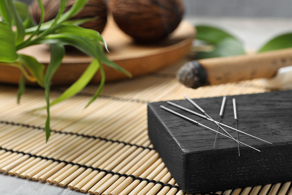 Akupunktur und Massage TCM